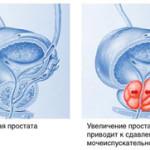 Признаки и причины возникновения простатита
