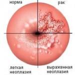 Возникают ли боли при эрозии шейки матки?