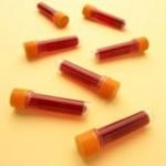 Анализ крови ПТИ: норма и отклонения