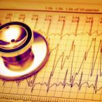 Частое сердцебиение как повод для беспокойства