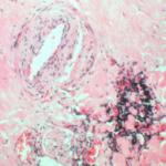 Облитерирующий эндартериит